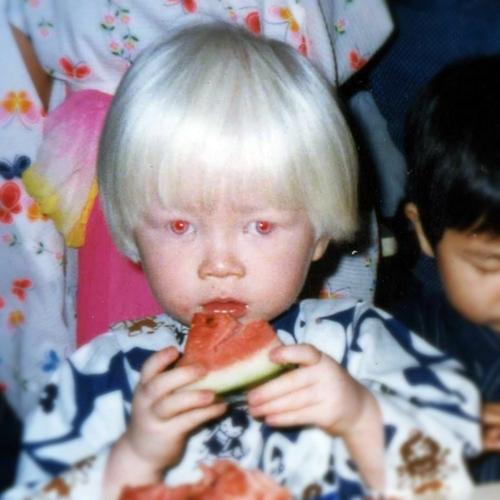 赤い目のアルビノの子供