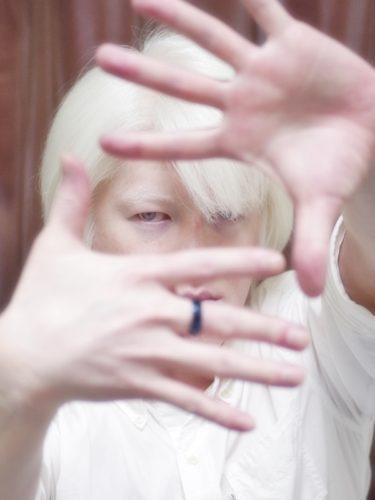 focus Japanese Albinism
