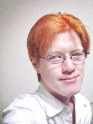 アルビノの僕がカシスオレンジ色になった – KASUYA.net