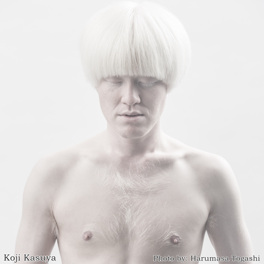 japanese albinism photo