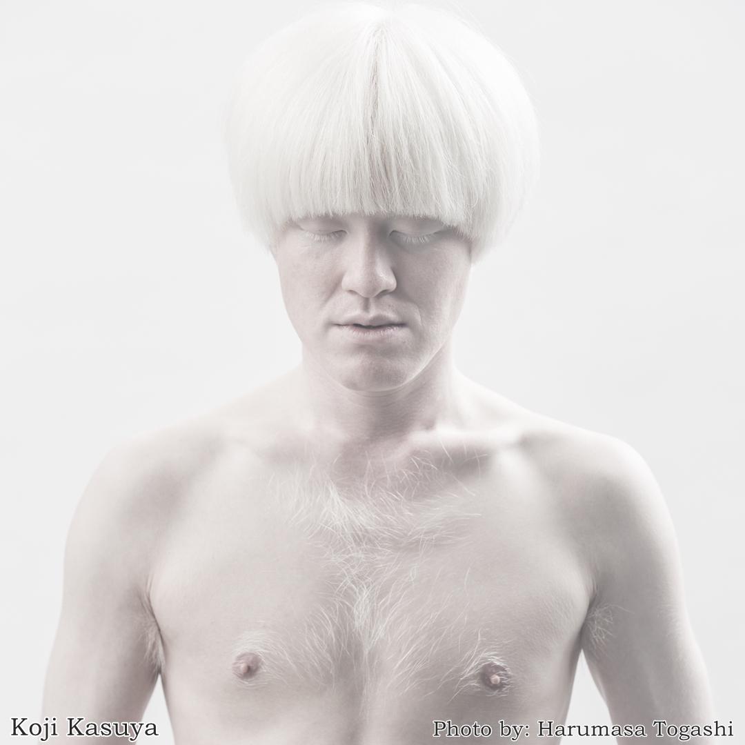 japanese albinism photo