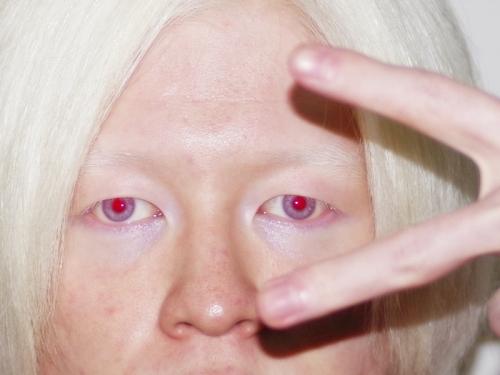アルビノ 赤目