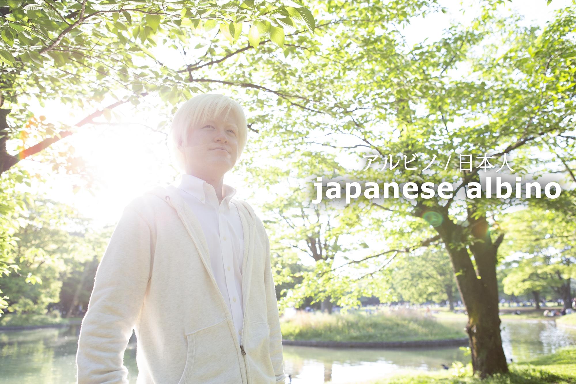 Japanese Albino 日本人のアルビノ