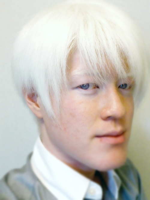 アルビノの日本人の画像