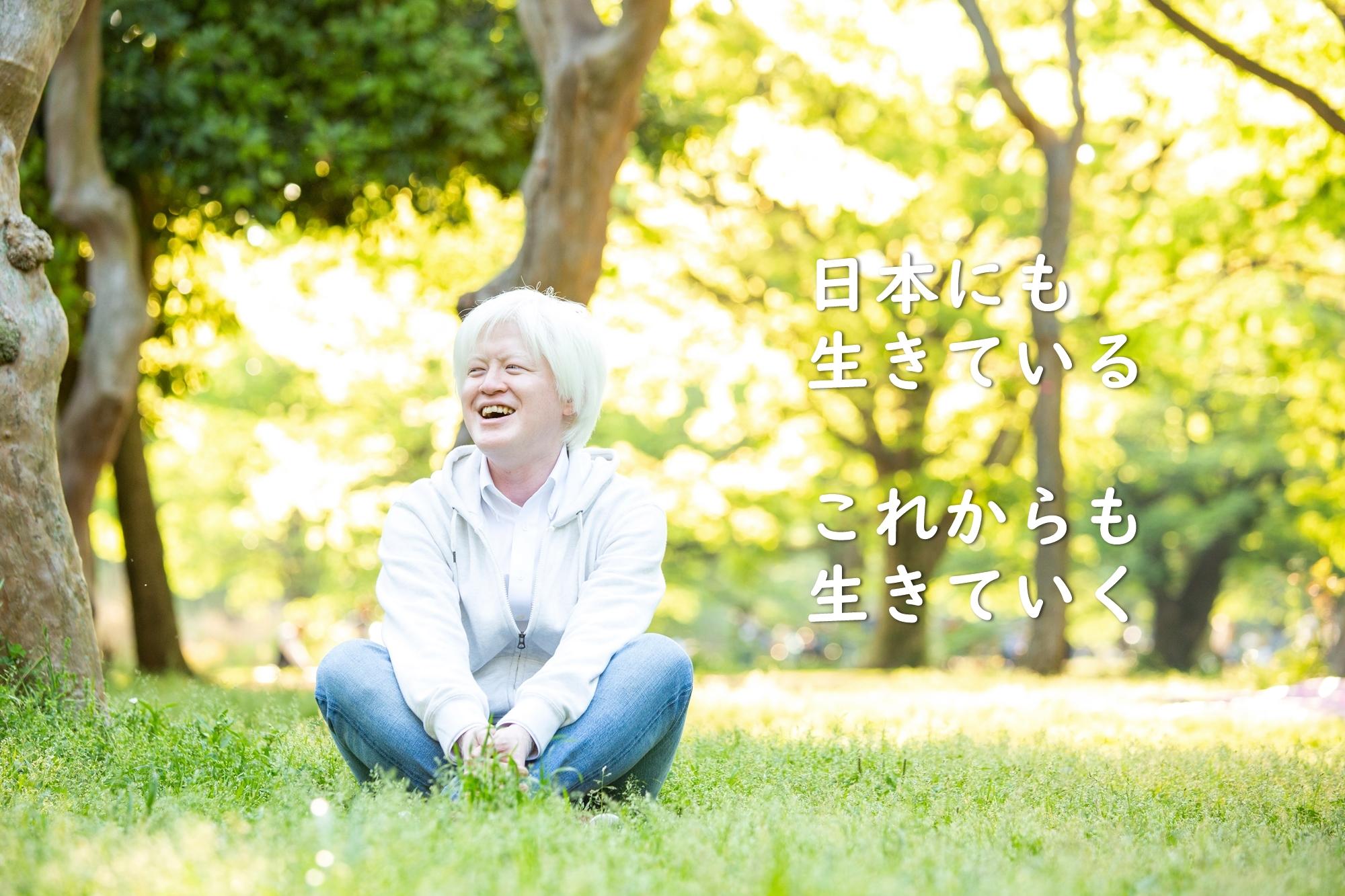 アルビノの人間は日本にも生きている