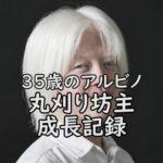 日本人のアルビノ丸刈り坊主 企画完了報告