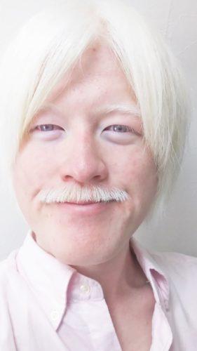 日本人のアルビノ:粕谷幸司がヒゲをやめるに至った理由 – KASUYA.net