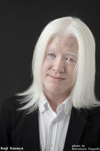 アルビノの白い髪と淡い瞳の色