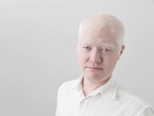 アルビノ 白い肌 髪の毛 まつ毛 眉毛
