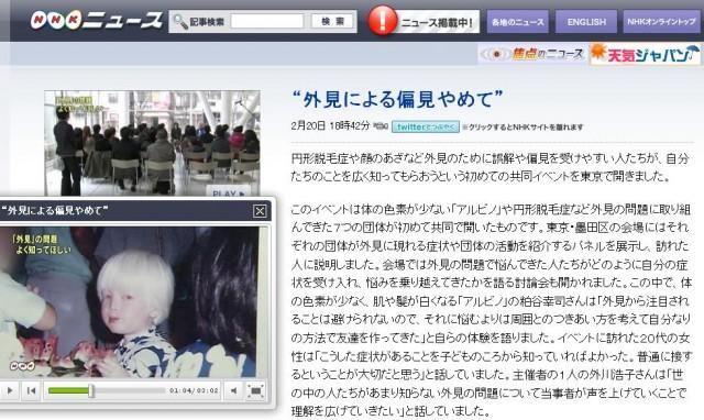 アルビノ NHK ニュース7 粕谷幸司