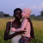スペインのフォトグラファーが撮影したアルビノの子「Ayimpoka」の写真作品が[ニコンフォトコンテスト 2018-2019]Next Generation部門で金賞→グランプリに輝く